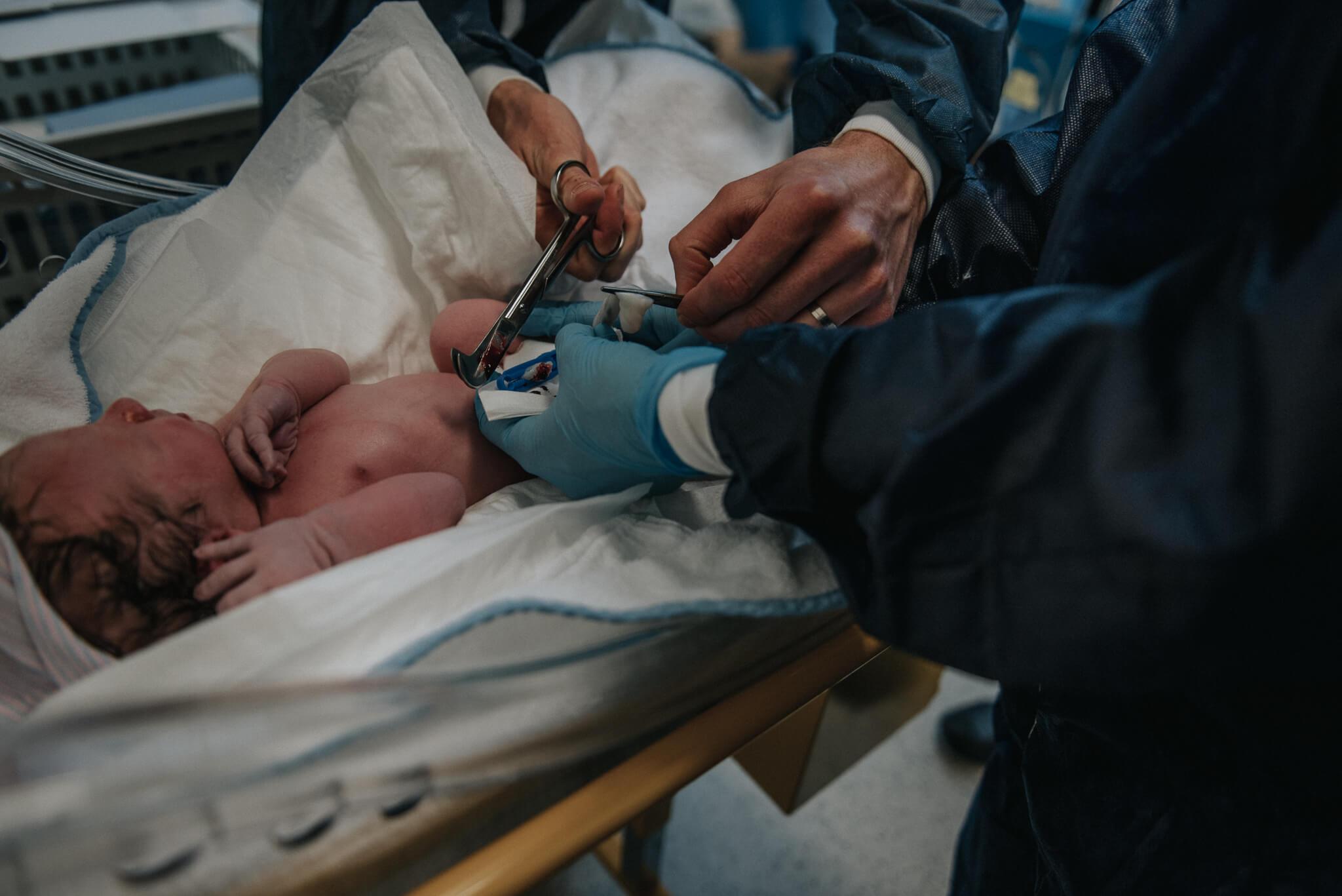 Geboortefotografie Den Bosch JBZ geplande keizersnede